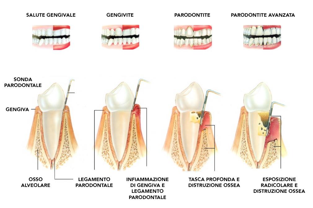 Le fasi della parodontite