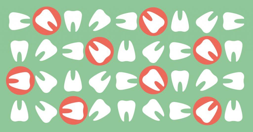 Denti storti cosa fare