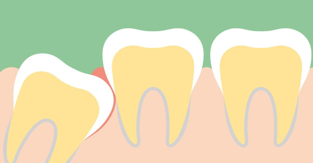 che cos'è la disodontiasi